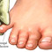 Athlete's Foot (Tinea Pedis): Signs, Symptoms, Causes and Treatment