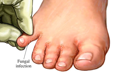 Natural Cure For Foot Fungal Infection