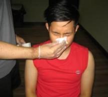 Treating a broken nose
